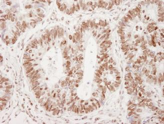 Immunohistochemistry (Formalin/PFA-fixed paraffin-embedded sections) - 53BP1 (phospho S25) antibody (ab82550)