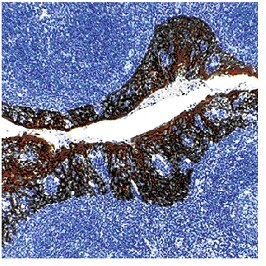 Immunohistochemistry (Formalin/PFA-fixed paraffin-embedded sections) - Cytokeratin antibody [MNF116], prediluted (ab82612)