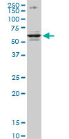 Western blot - CSAD antibody [2C11] (ab82613)