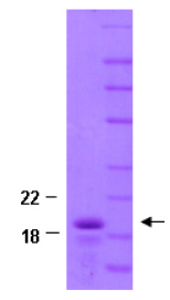 SDS-PAGE - beta Synuclein protein (His tag) (ab82630)