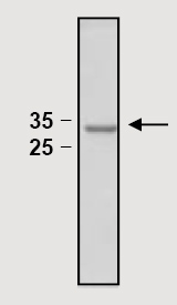 SDS-PAGE - Active <em>S. cerevisiae</em> TXNRD1 full length protein (ab82634)