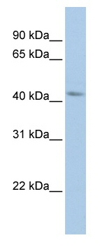 Western blot - BarH2 antibody (ab82639)