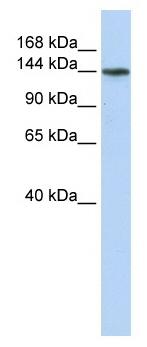 Western blot - ATP11B antibody (ab82640)
