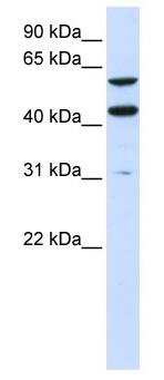 Western blot - PTDSS1 antibody (ab82642)