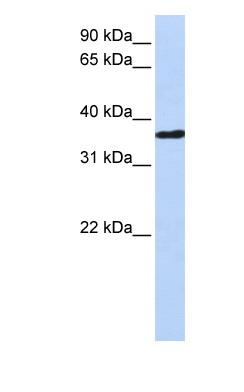 Western blot - CHORDC1 antibody (ab82661)