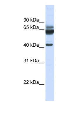 Western blot - PARD6B antibody (ab82662)