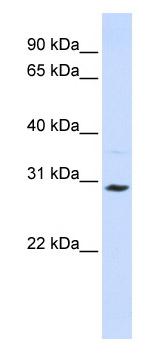 Western blot - SLC25A20 antibody (ab82678)