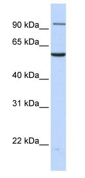 Western blot - TNPO2 antibody (ab82681)
