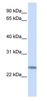 Western blot - C12orf49 antibody (ab82682)
