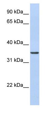 Western blot - CDC42EP4 antibody (ab82683)