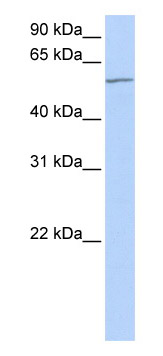 Western blot - MTA3 antibody (ab82684)