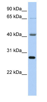 Western blot - RBM34 antibody (ab82685)