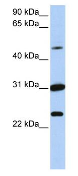 Western blot - XK antibody (ab82686)