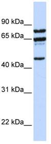 Western blot - PPP4R2 antibody (ab82693)