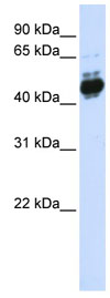 Western blot - AP2 beta antibody (ab82711)