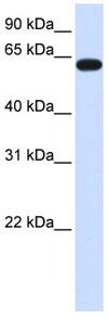 Western blot - HS6ST3 antibody (ab82719)