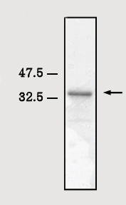 SDS-PAGE - S100 beta protein (Tagged) (ab82734)