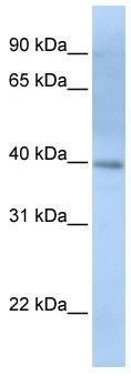 Western blot - ITPK1 antibody (ab82739)