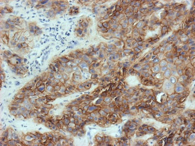 Immunohistochemistry (Formalin/PFA-fixed paraffin-embedded sections) - Anti-EGFR antibody [111.6], prediluted (ab82751)