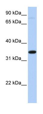 Western blot - SLC44A3 antibody (ab82757)