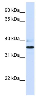 Western blot - B3GALT1 antibody (ab82760)