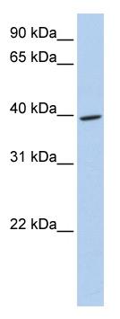 Western blot - Meis homeobox 3 antibody (ab82761)