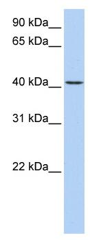 Western blot - TMEM144 antibody (ab82767)