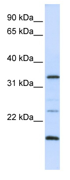 Western blot - ARGFX antibody (ab82771)