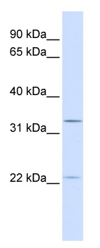 Western blot - BRI3BP antibody (ab82776)