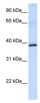 Western blot - HAO2 antibody (ab82777)