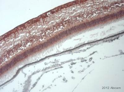 Immunohistochemistry (Formalin/PFA-fixed paraffin-embedded sections) - Anti-Anoctamin 3 antibody (ab82781)
