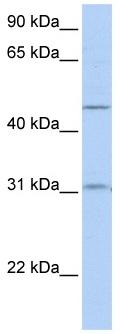 Western blot - SLC39A11 antibody (ab82782)