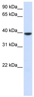 Western blot - AGPAT5 antibody (ab82783)