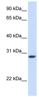 Western blot - TNNT3 antibody (ab82784)