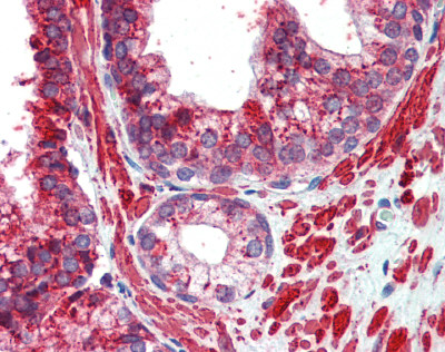 Immunohistochemistry (Formalin/PFA-fixed paraffin-embedded sections) - Anti-AP2 gamma antibody (ab82788)