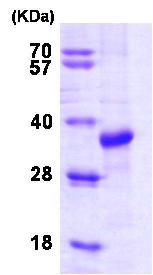 SDS-PAGE - STUB1 protein (Human) (ab82791)