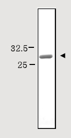 SDS-PAGE - Beta-amyloid protein 40 (ab82797)