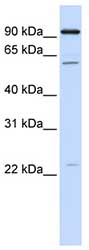 Western blot - CDC45L antibody (ab82805)