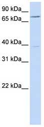 Western blot - C17orf80 antibody (ab82806)