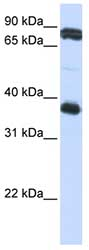 Western blot - Glycoprotein VI antibody (ab82807)