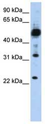 Western blot - TMEM38B antibody (ab82808)