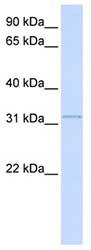 Western blot - SUSD4 antibody (ab82809)