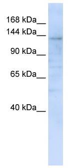 Western blot - IMPG2 antibody (ab82813)