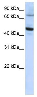 Western blot - CYP46 antibody (ab82814)