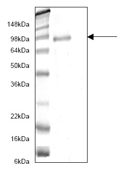 SDS-PAGE - ADAM10 protein (His tag) (ab82822)