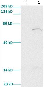 Western blot - FOXA2 antibody (ab82827)