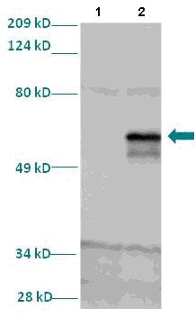 Western blot - LMX1A antibody (ab82833)
