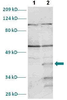 Western blot - MYF6 antibody (ab82842)