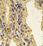 Immunohistochemistry (Formalin/PFA-fixed paraffin-embedded sections) - CYP3A43 antibody - N-terminal (ab82849)