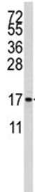 Western blot - S100A11 antibody (ab82850)